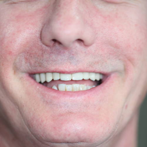 10-The-final-smile-Happy-Patient-with-Lifehcanging-work.-No-more-loose-dentures-no-more-glue-no-more-burning-the-back-of-your-throat-and-the-wine-tastes-so-much-better-scaled